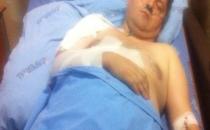 Gazeteci Bülent Atasert ameliyat oldu
